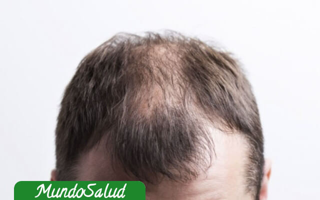 Alopecia en el hombre